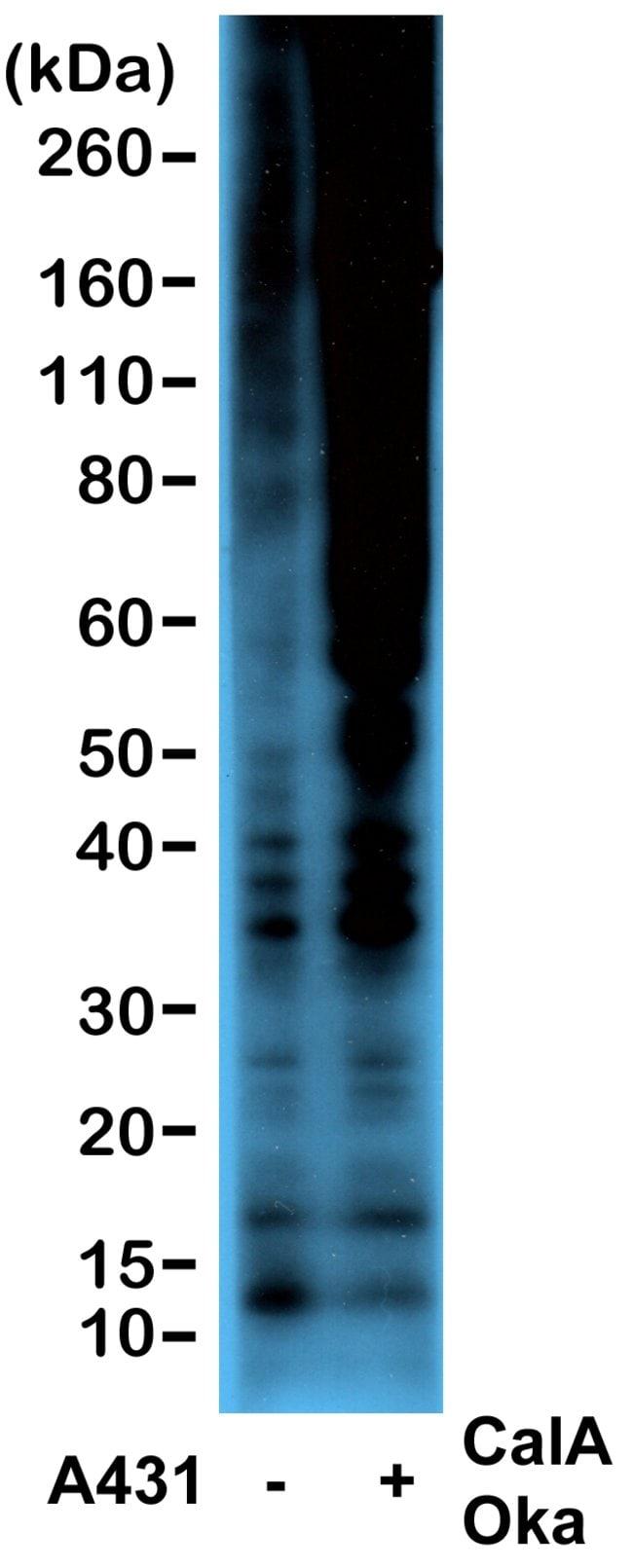 Phosphothreonine Rabbit anti-All, Invitrogen 100 µg; Unconjugated