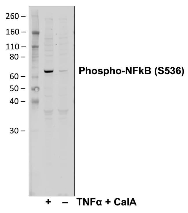 Phospho-NFkB p65 (Ser536) Rabbit anti-Human, Mouse, Invitrogen 200 µL;