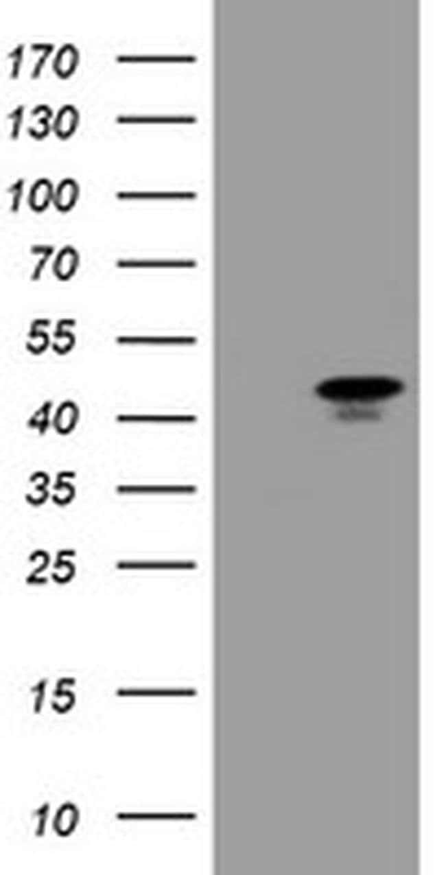 MAFB Mouse anti-Human, Clone: OTI3F6, liquid, TrueMAB  100 µL; Unconjugated