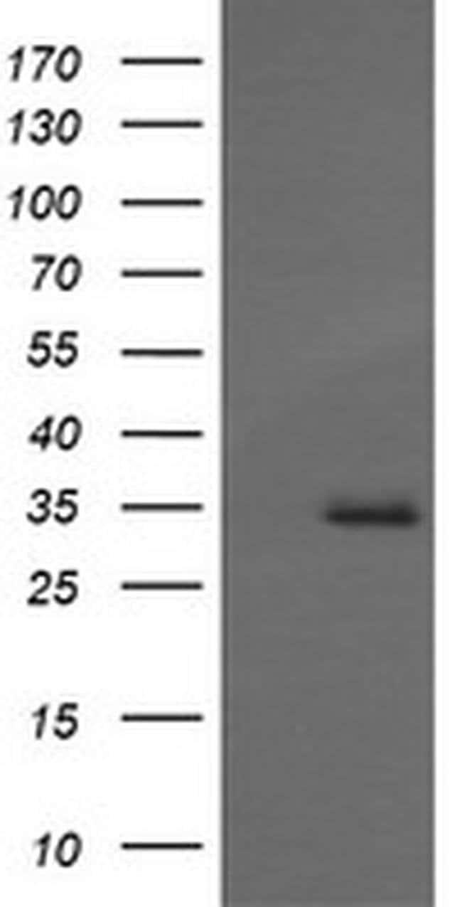 MAGEA4 Mouse anti-Human, Clone: OTI1F9, liquid, TrueMAB  30 µL; Unconjugated