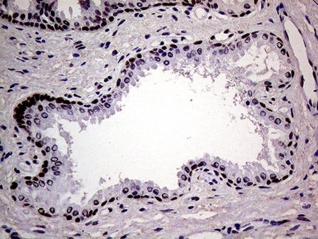 MAGEB4 Mouse anti-Human, Clone: OTI3H2, lyophilized, TrueMAB  100 µg;