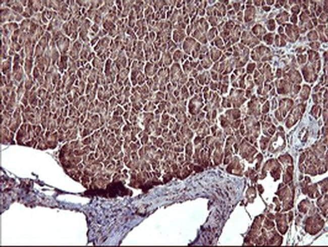 MAP2K1 Mouse anti-Human, Clone: OTI9E9, liquid, TrueMAB  100 µL; Unconjugated
