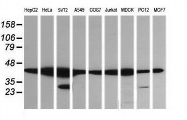 MAP2K1 Mouse anti-Canine, Human, Mouse, Rat, Clone: OTI7B1, liquid, TrueMAB