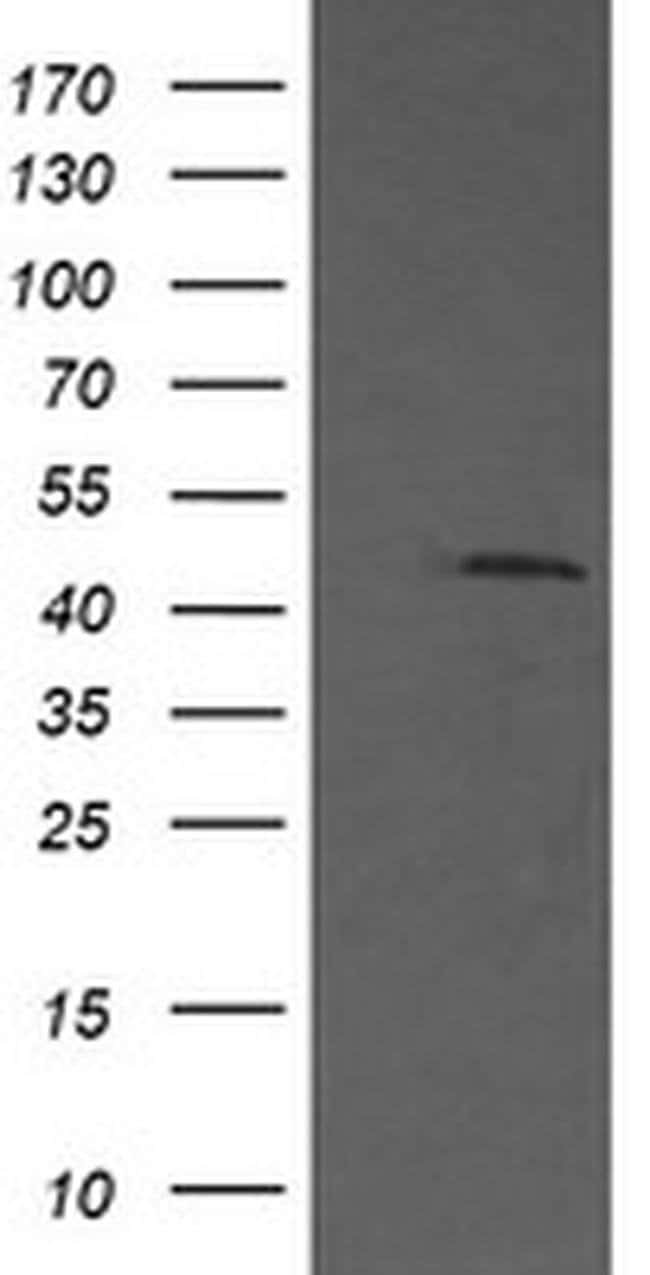 MAP2K1 Mouse anti-Human, Clone: OTI5F5, liquid, TrueMAB  100 µL; Unconjugated