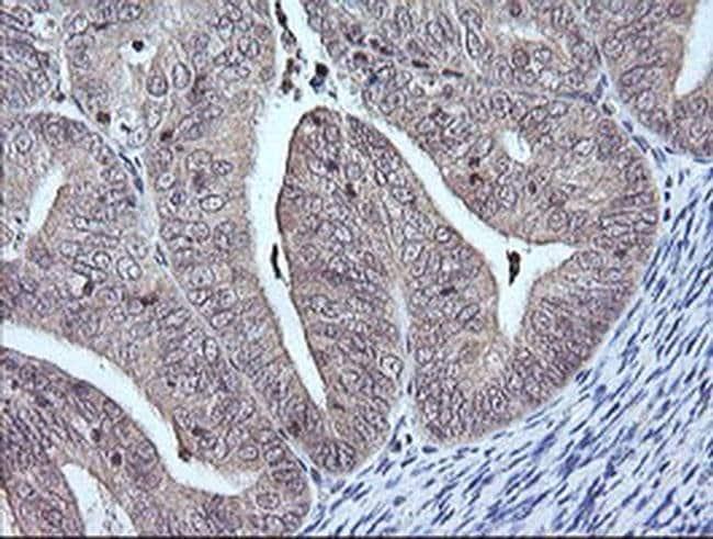 MAP2K3 Mouse anti-Human, Clone: OTI6C6, liquid, TrueMAB  100 µL; Unconjugated