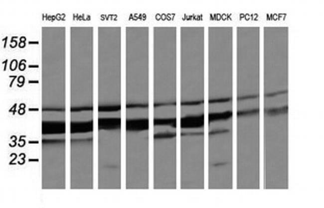 MAP2K3 Mouse anti-Canine, Human, Mouse, Rat, Clone: OTI6B12, liquid, TrueMAB