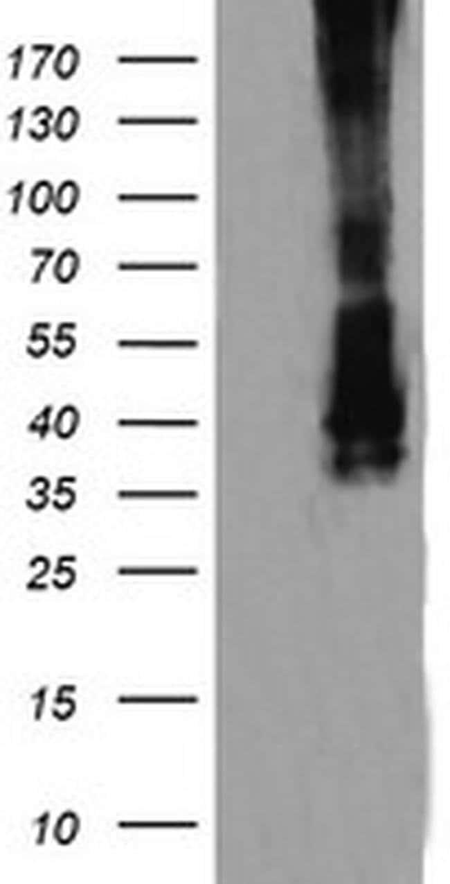MAP2K3 Mouse anti-Canine, Human, Mouse, Rat, Clone: OTI6B11, liquid, TrueMAB
