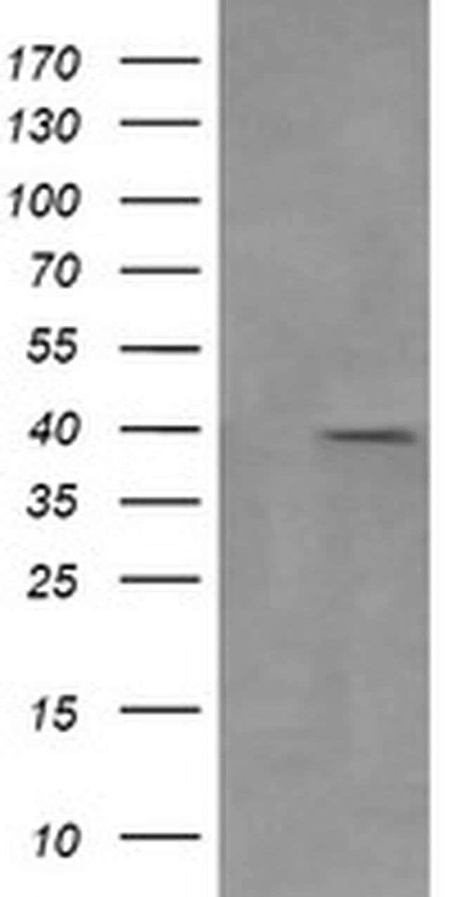 MAP2K3 Mouse anti-Canine, Human, Clone: OTI5D7, liquid, TrueMAB  100 µL;
