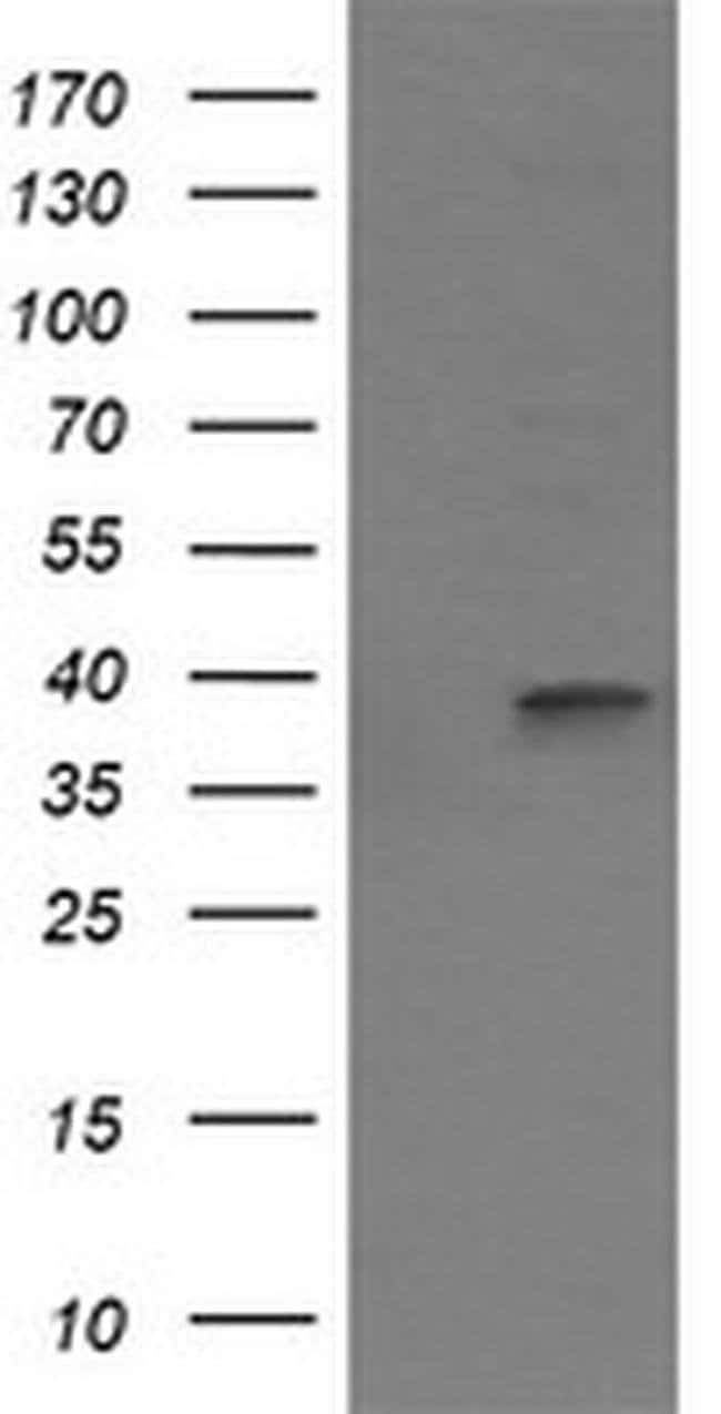 MAP2K3 Mouse anti-Canine, Human, Clone: OTI2G8, liquid, TrueMAB  100 µL;