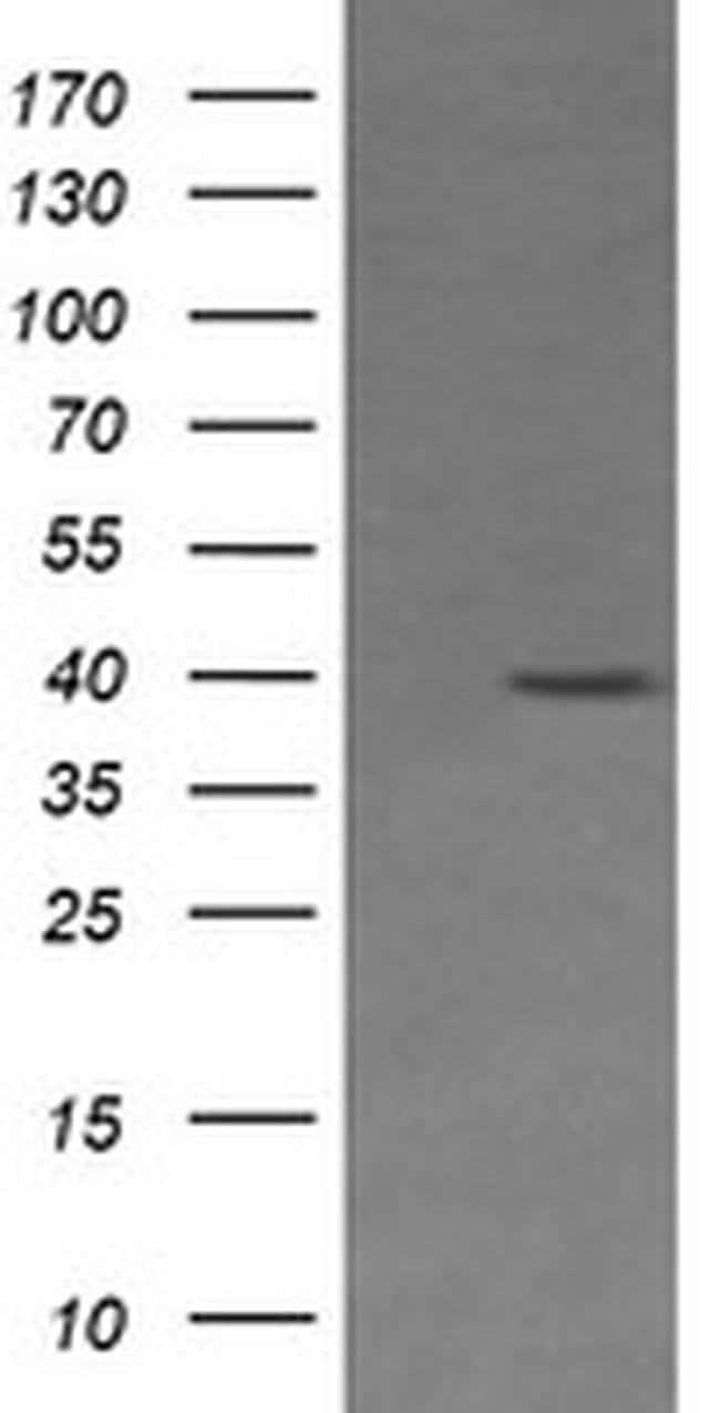 MAP2K3 Mouse anti-Human, Clone: OTI5E2, liquid, TrueMAB  100 µL; Unconjugated