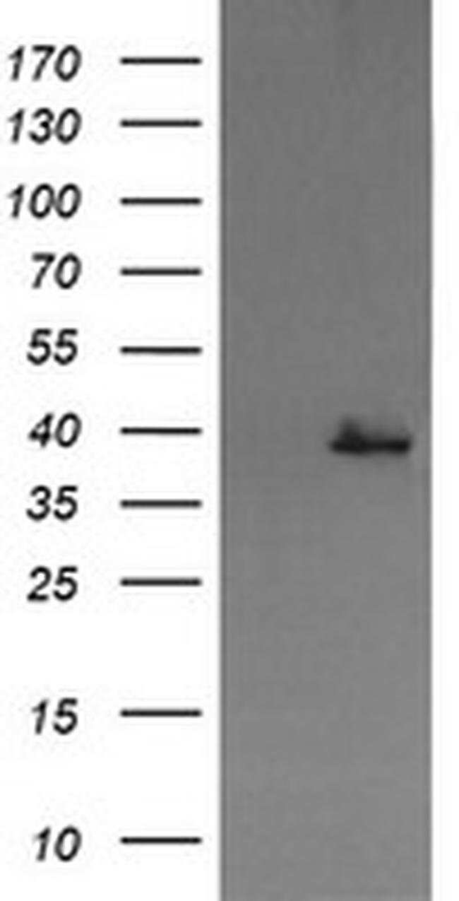 MAP2K3 Mouse anti-Canine, Human, Clone: OTI5C9, liquid, TrueMAB  100 µL;