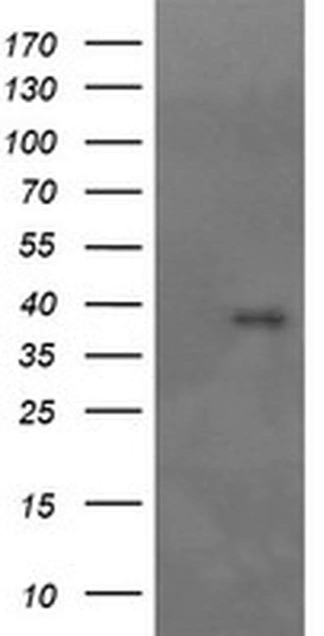 MAP2K3 Mouse anti-Canine, Human, Clone: OTI2G3, liquid, TrueMAB  100 µL;