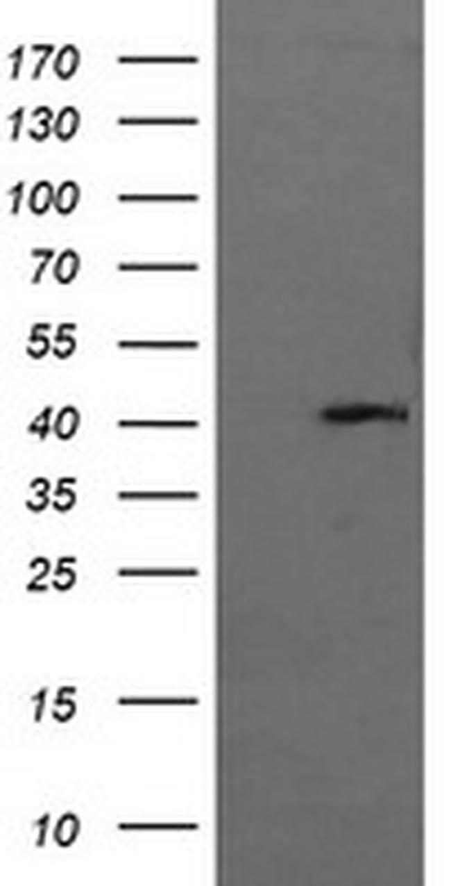 MAPK13 Mouse anti-Human, Clone: OTI12D11, liquid, TrueMAB  100 µL;