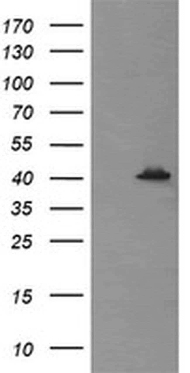 MAPK13 Mouse anti-Human, Clone: OTI12C3, liquid, TrueMAB  100 µL;