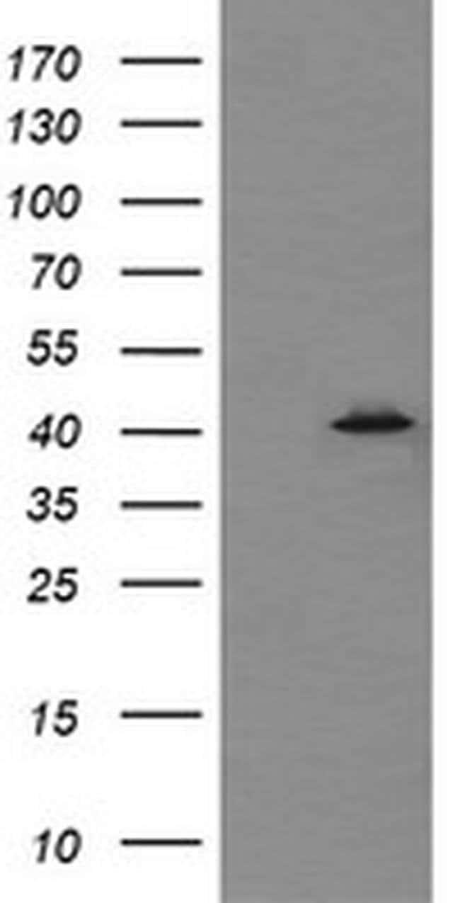 MAPK13 Mouse anti-Human, Clone: OTI12A11, liquid, TrueMAB  100 µL;