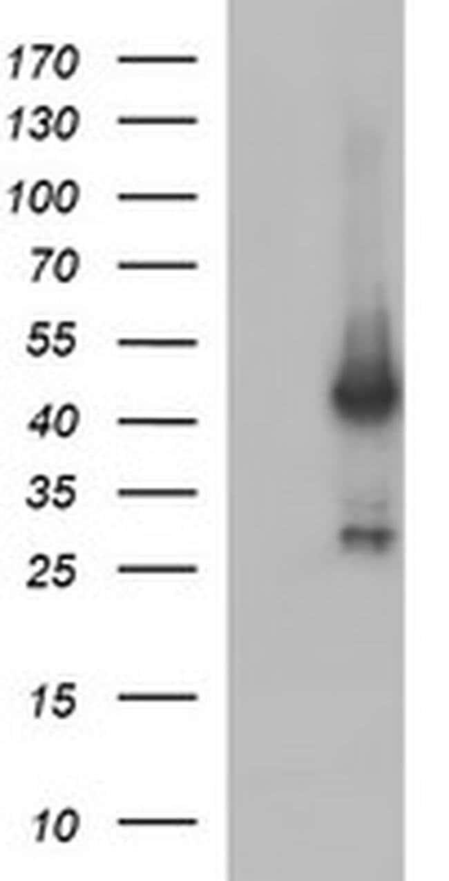 MAPK13 Mouse anti-Human, Clone: OTI12D2, liquid, TrueMAB  100 µL;