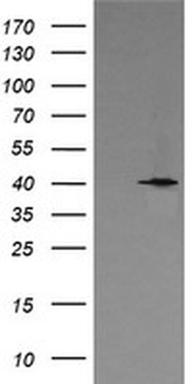 MAPK13 Mouse anti-Human, Clone: OTI2F1, liquid, TrueMAB  100 µL; Unconjugated