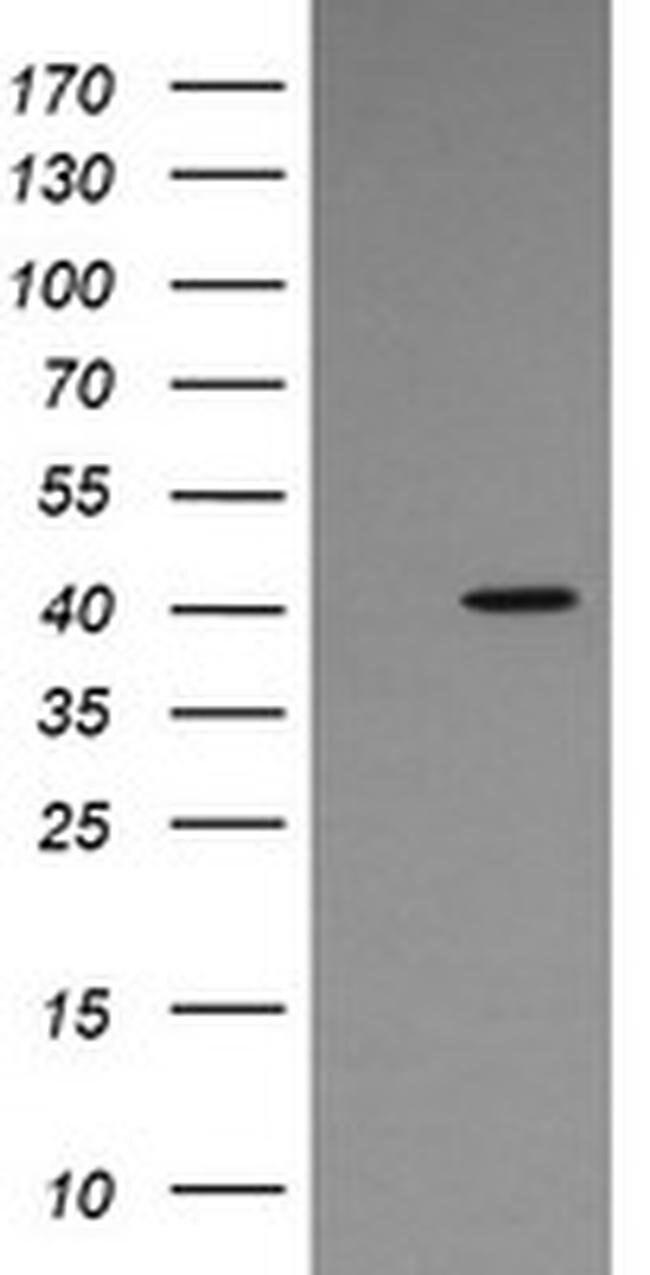 MAPK13 Mouse anti-Human, Clone: OTI12B6, liquid, TrueMAB  100 µL;