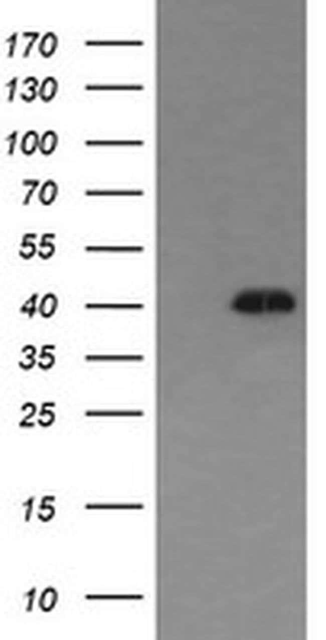 MAPK13 Mouse anti-Human, Clone: OTI12B8, liquid, TrueMAB  100 µL;