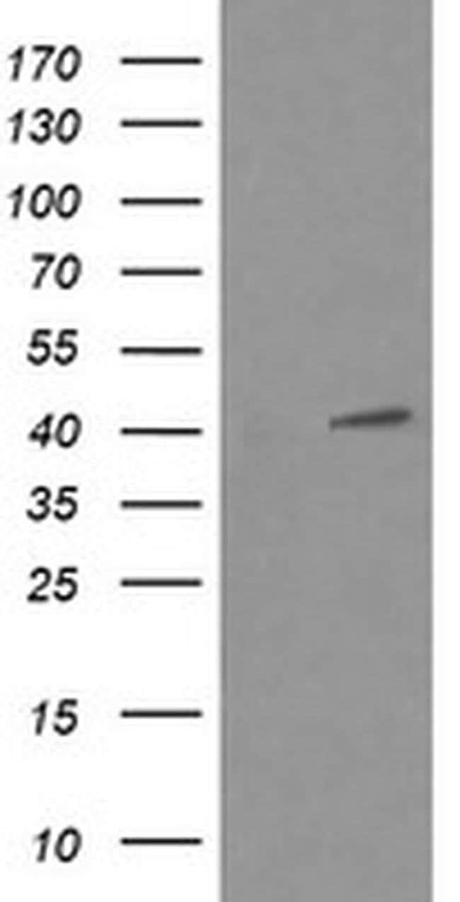 MAPK13 Mouse anti-Human, Clone: OTI2A10, liquid, TrueMAB  100 µL;