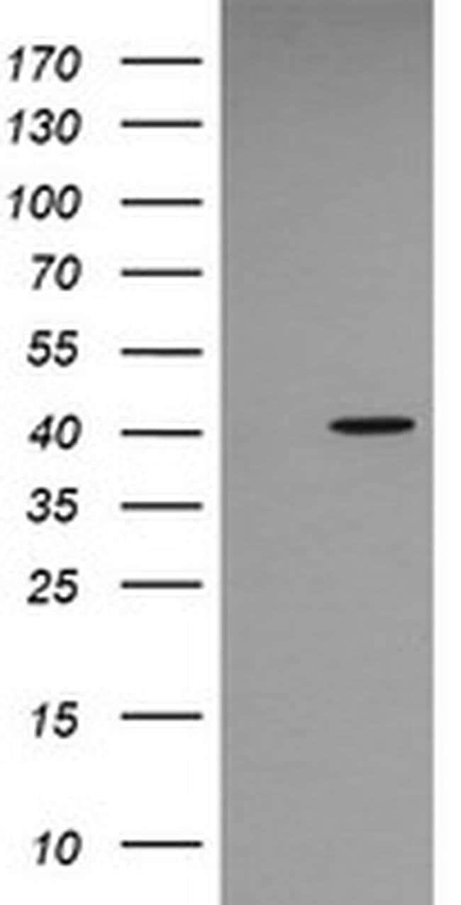 MAPK13 Mouse anti-Human, Clone: OTI2G5, liquid, TrueMAB  100 µL; Unconjugated