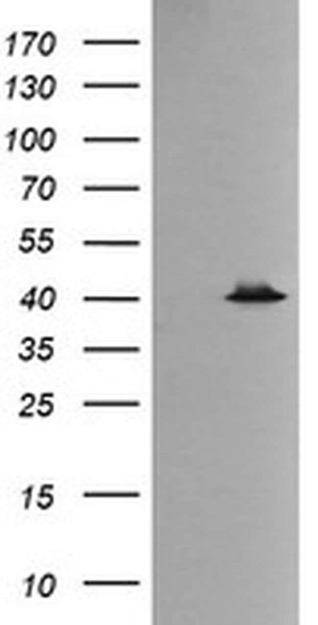 MAPK13 Mouse anti-Canine, Human, Mouse, Rat, Clone: OTI12B2, liquid, TrueMAB