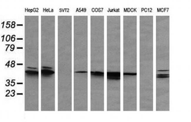 MAPK3 Mouse anti-Canine, Human, Clone: OTI4D7, liquid, TrueMAB  100 µL;