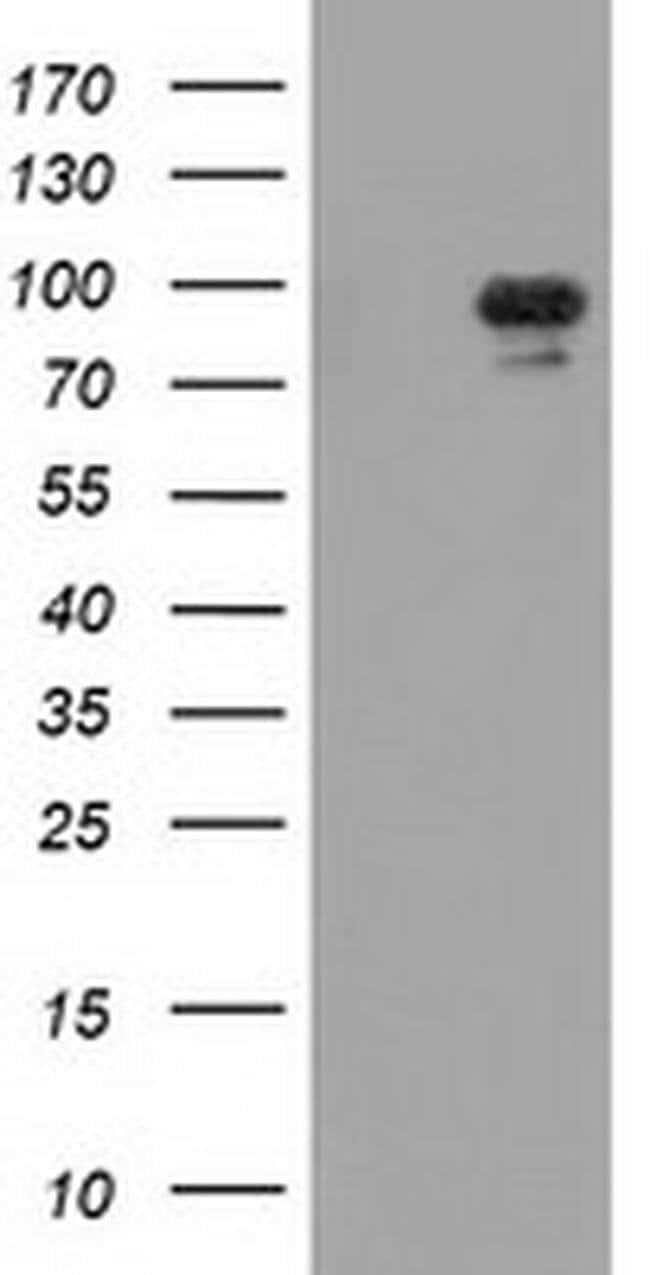 MAPK7 Mouse anti-Human, Clone: OTI2F1, liquid, TrueMAB  100 µL; Unconjugated