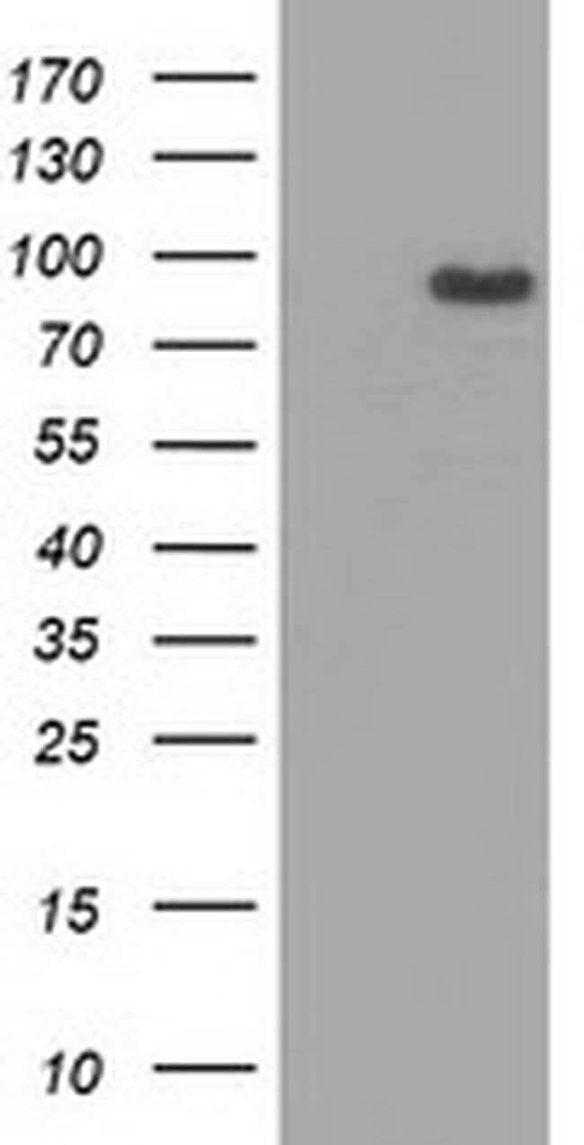 MAPK7 Mouse anti-Human, Clone: OTI4D6, liquid, TrueMAB  100 µL; Unconjugated