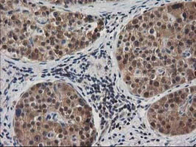 MAPRE2 Mouse anti-Human, Clone: OTI1F3, liquid, TrueMAB  100 µL; Unconjugated