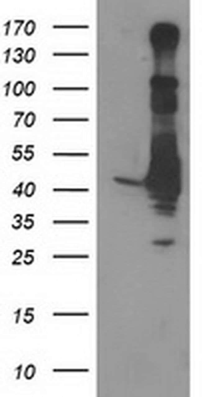 MAPRE2 Mouse anti-Human, Clone: OTI4G1, liquid, TrueMAB  100 µL; Unconjugated