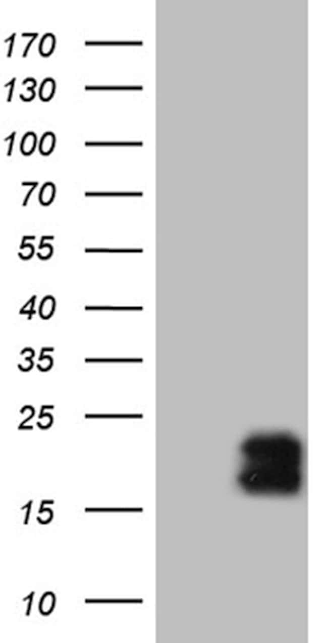 MCEE Mouse anti-Human, Clone: OTI3B11, lyophilized, TrueMAB  100 µg;