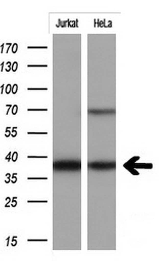 MCL1 Mouse anti-Human, Clone: OTI9D7, liquid, TrueMAB  100 µL; Unconjugated