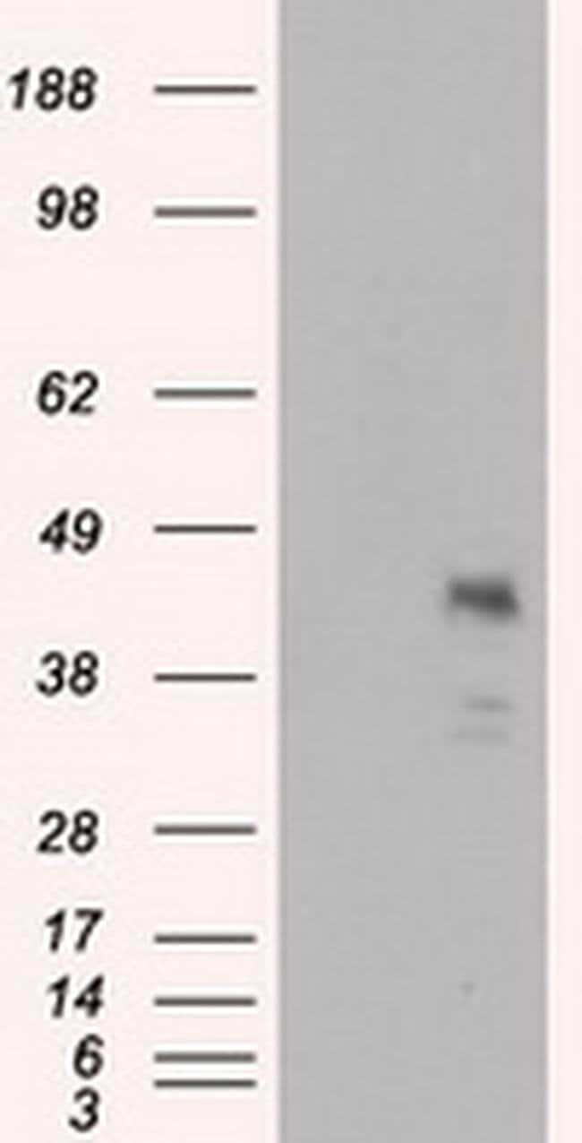 MCL1 Mouse anti-Human, Clone: OTI2E11, liquid, TrueMAB  100 µL; Unconjugated