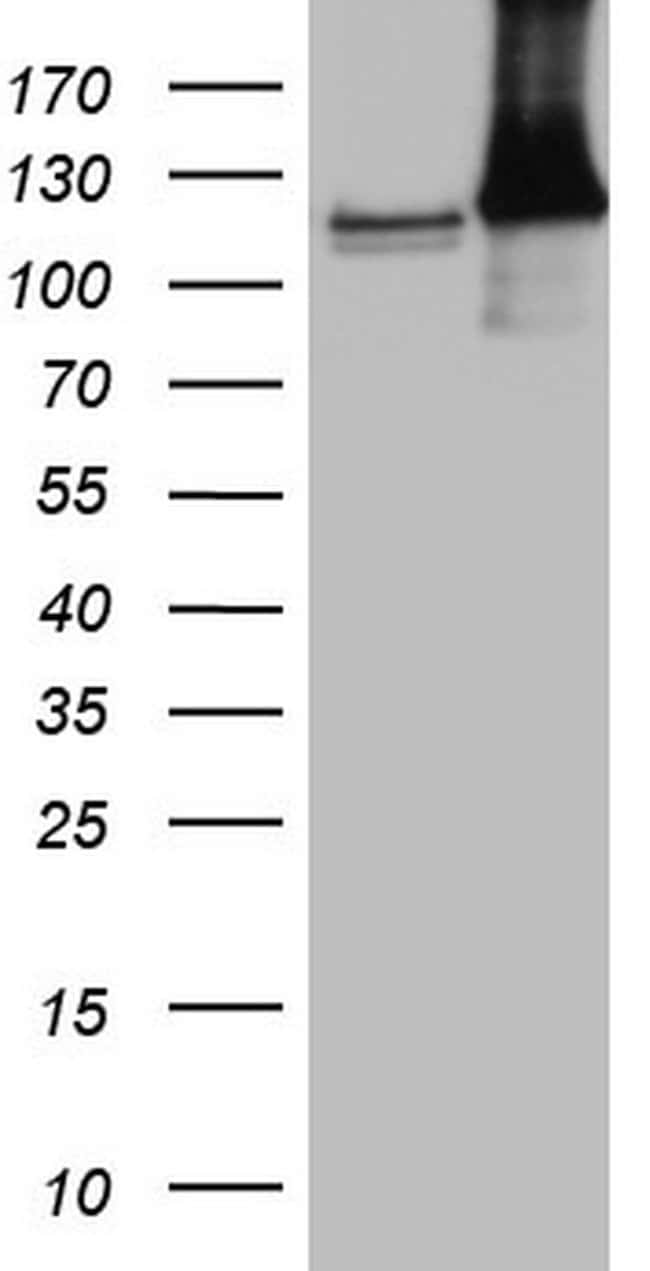 MCM2 Mouse anti-Human, Clone: OTI1G4, lyophilized, TrueMAB  100 µg;