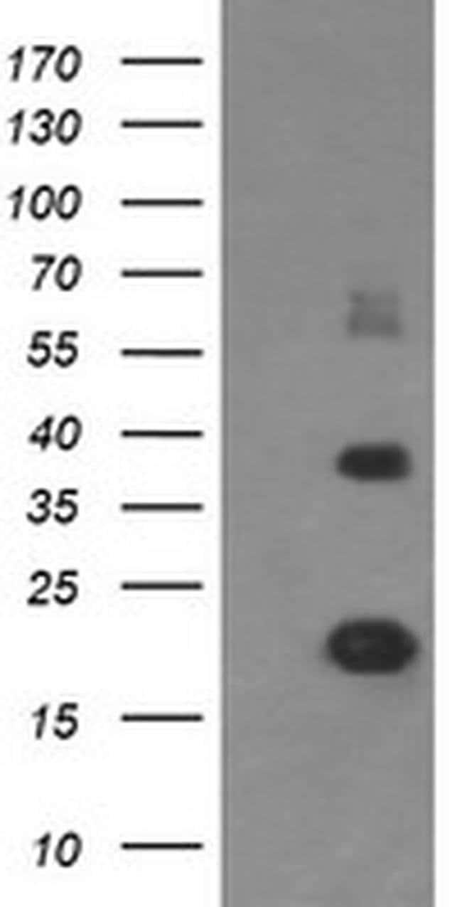 MCTS1 Mouse anti-Human, Clone: OTI 2G2, liquid, TrueMAB  100 µL; Unconjugated
