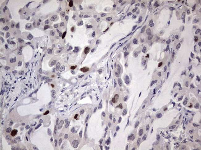 MDM2 Mouse anti-Human, Clone: OTI22D6, lyophilized, TrueMAB  100 µg;