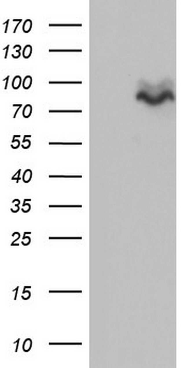 MDM2 Mouse anti-Human, Clone: OTI20D1, lyophilized, TrueMAB  100 µg;