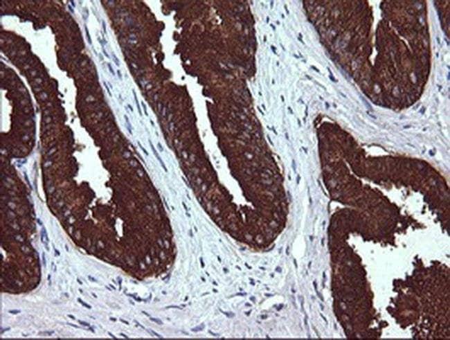 MDM4 Mouse anti-Human, Clone: OTI2B8, liquid, TrueMAB  100 µL; Unconjugated
