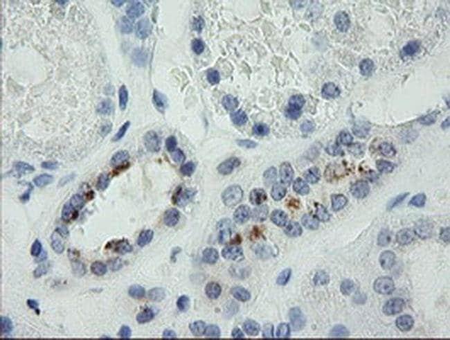 MDM4 Mouse anti-Human, Clone: OTI4G3, liquid, TrueMAB  100 µL; Unconjugated