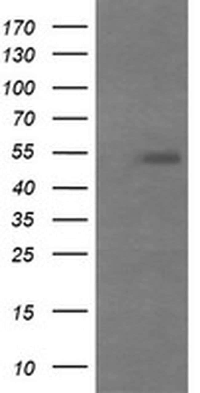 MDM4 Mouse anti-Human, Clone: OTI4B5, liquid, TrueMAB  100 µL; Unconjugated