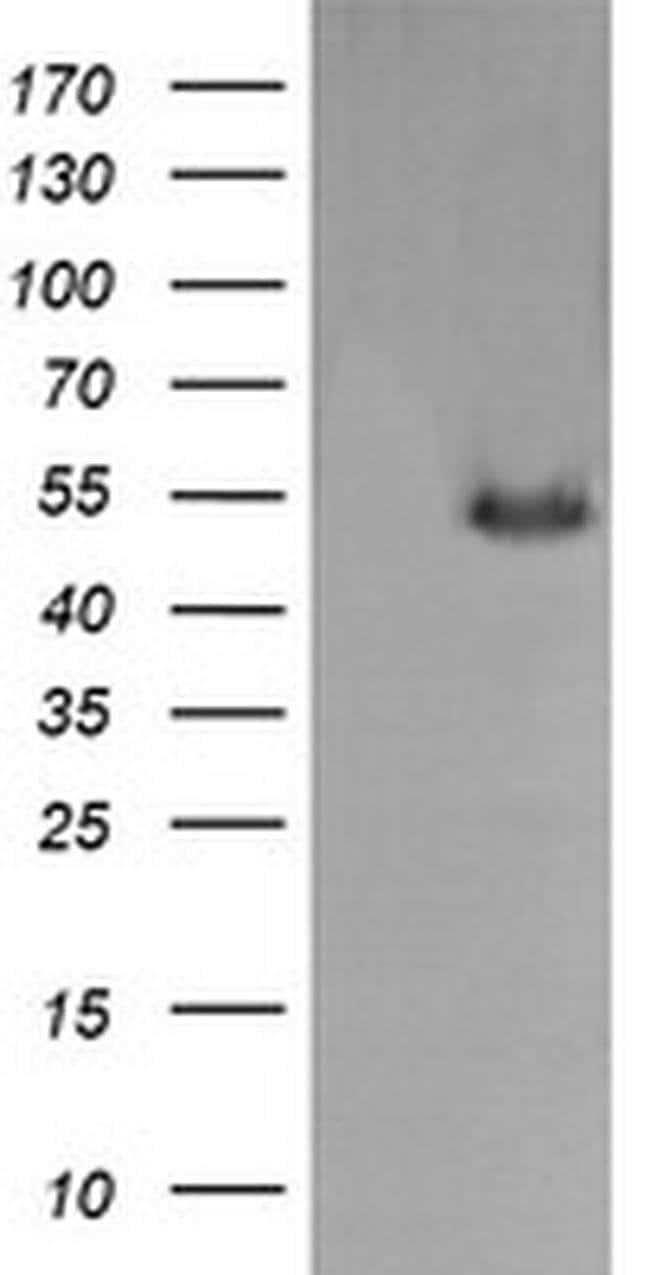 MDM4 Mouse anti-Human, Clone: OTI4G5, liquid, TrueMAB  100 µL; Unconjugated