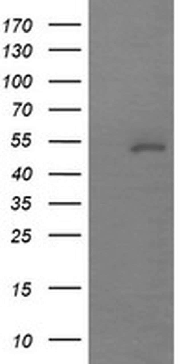 MDM4 Mouse anti-Human, Clone: OTI3A6, liquid, TrueMAB  100 µL; Unconjugated