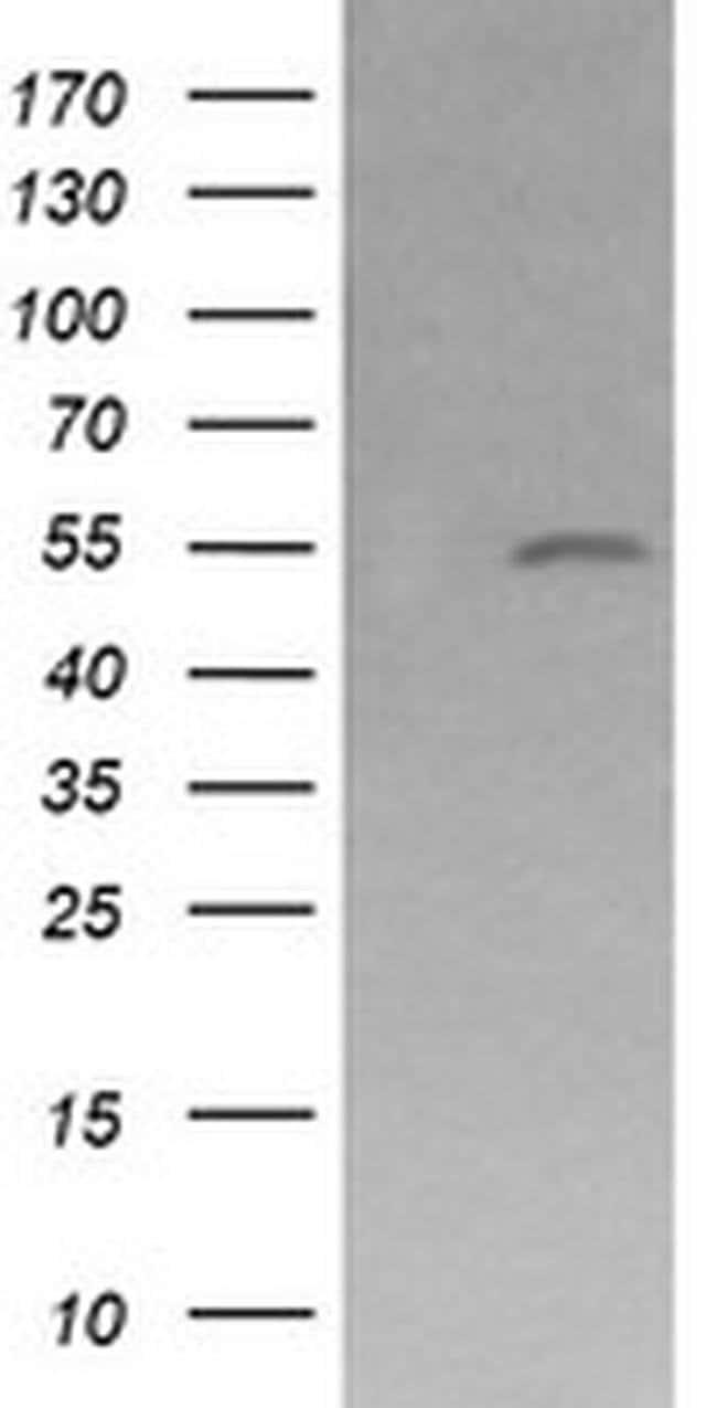 MDM4 Mouse anti-Human, Clone: OTI4D2, liquid, TrueMAB  100 µL; Unconjugated