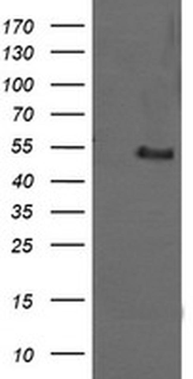 MDM4 Mouse anti-Human, Clone: OTI2C9, liquid, TrueMAB  100 µL; Unconjugated