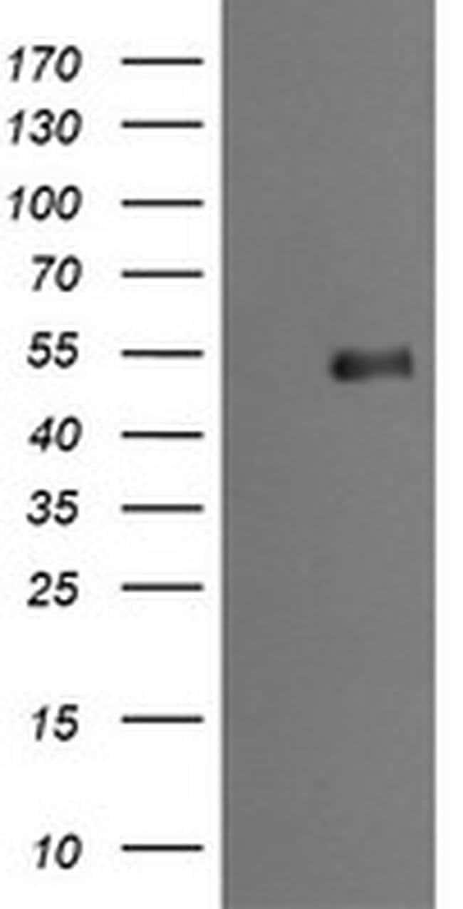 MDM4 Mouse anti-Human, Clone: OTI2E11, liquid, TrueMAB  100 µL; Unconjugated