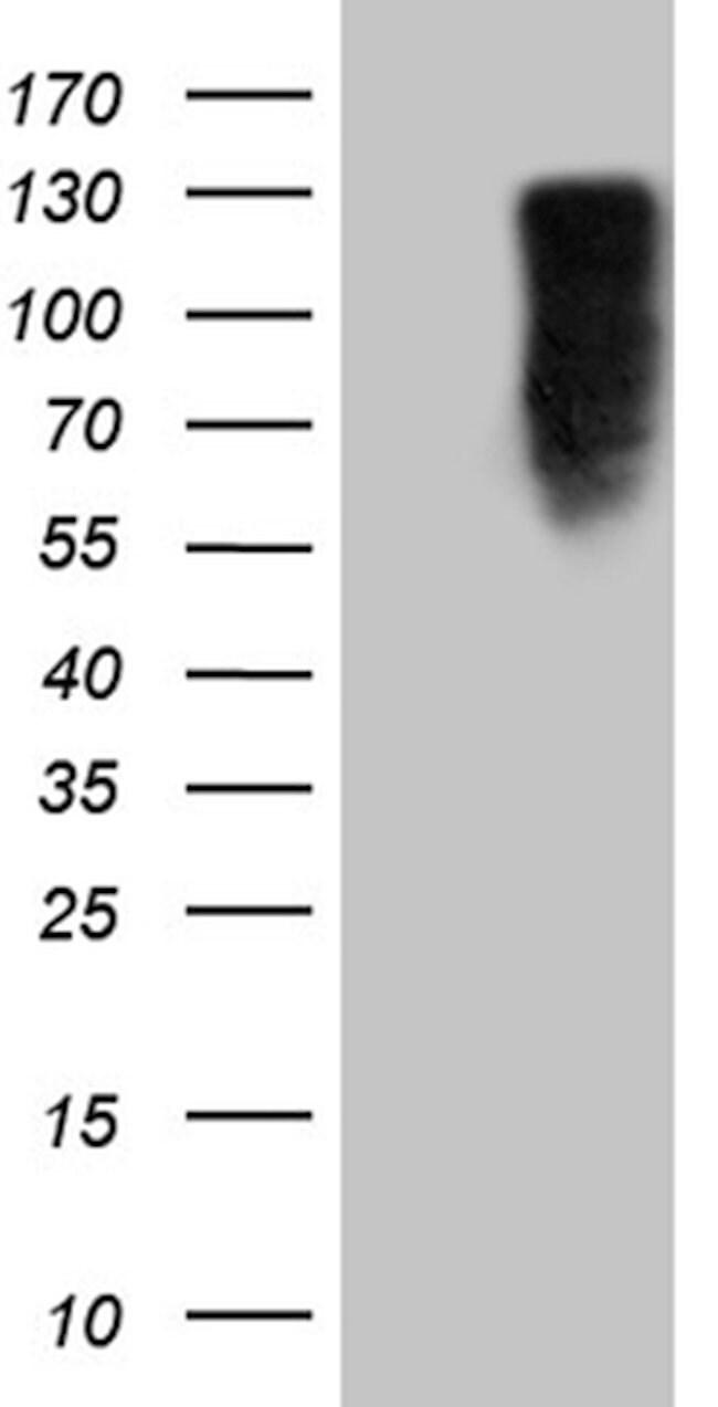 MED15 Mouse anti-Human, Clone: OTI3H10, lyophilized, TrueMAB  100 µg;