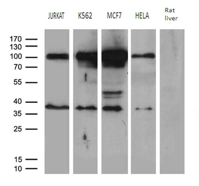 MED19 Mouse anti-Human, Clone: OTI2D1, lyophilized, TrueMAB  100 µg;