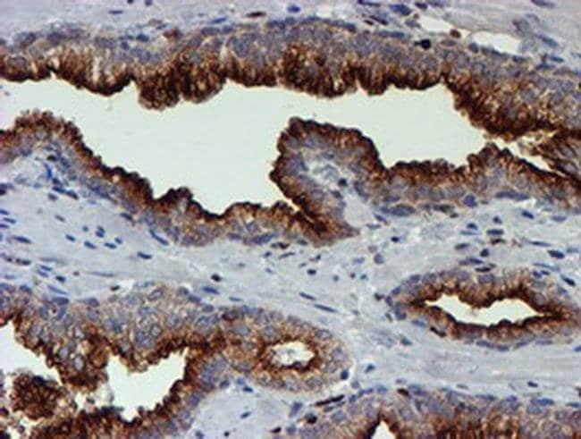 MEF2C Mouse anti-Human, Clone: OTI4G8, liquid, TrueMAB  100 µL; Unconjugated