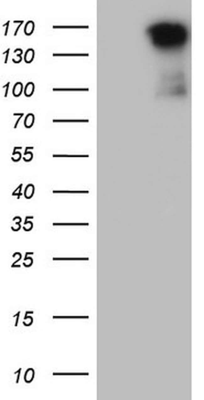 MET Mouse anti-Human, Clone: OTI18A5, lyophilized, TrueMAB  100 µg;